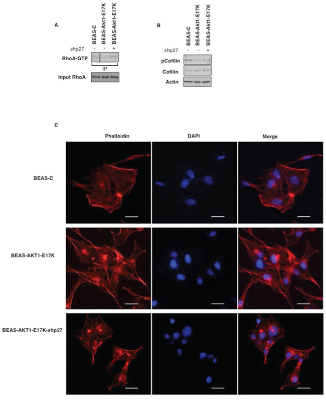p27 is required for motility induced by mutant AKT1-E17K.