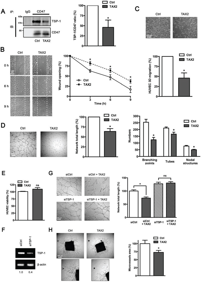 TAX2 peptide impairs endothelial cell migration and inhibits angiogenesis in vitro and ex vivo.