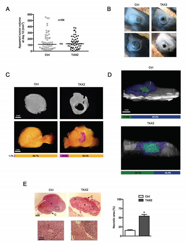 TAX2 induces central tumor necrosis in a mouse melanoma allograft model.
