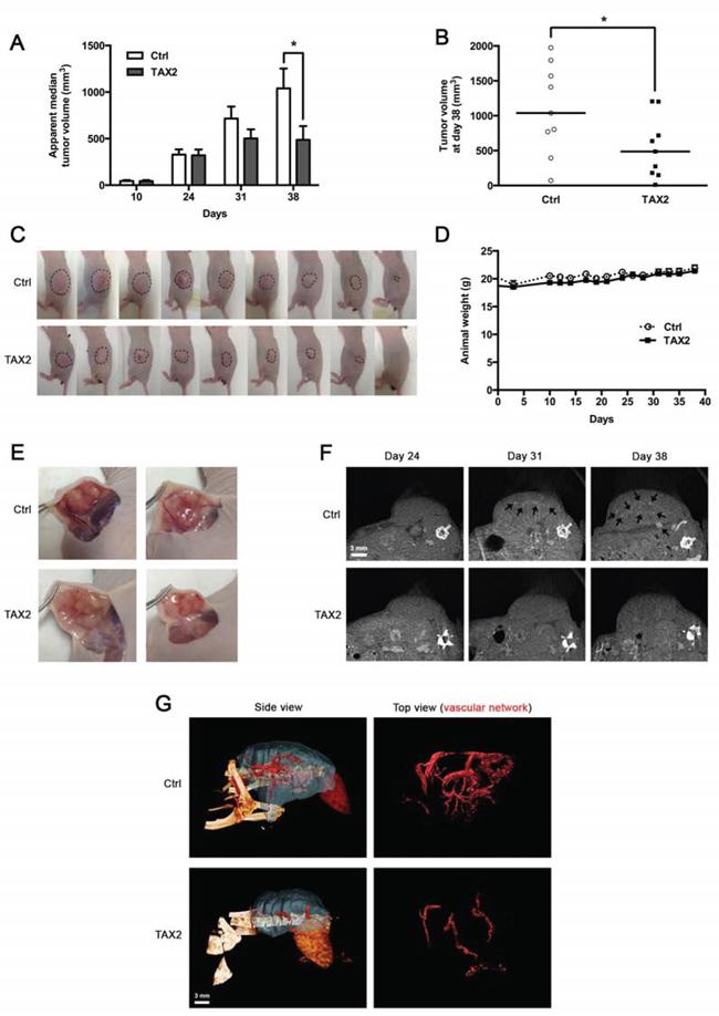 TAX2 inhibits growth of human pancreatic carcinoma tumor xenografts.