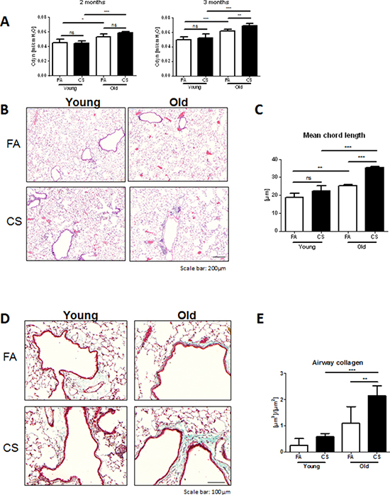 Aged mice develop emphysema and airway remodeling after 3 months of CS exposure.