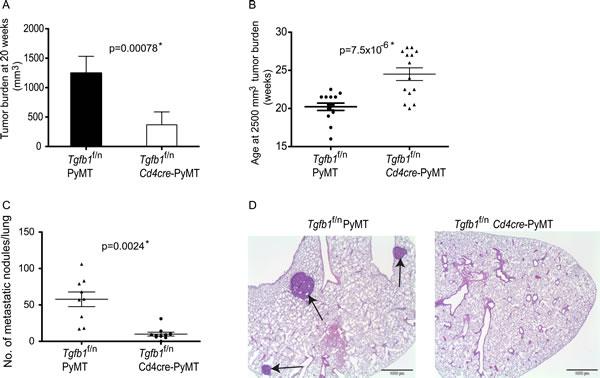 Deficiency of T cell TGF-β1 inhibits mammary tumor development.
