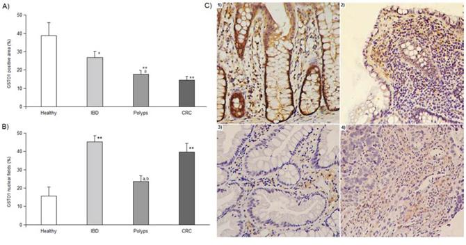 GSTO1 immunohistochemistry results.