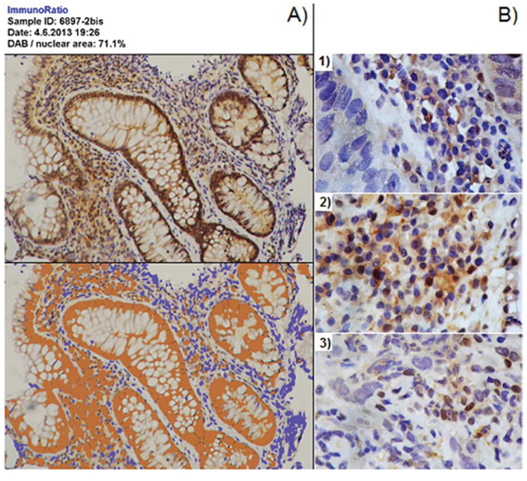 Image analysis for GSTO1 in tissue.