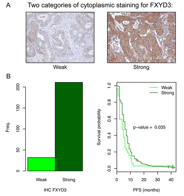 FXYD3 expression in the primary tumors of patients with mCRC and the related PFS.