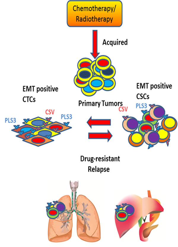 Understanding the dynamic equilibrium between EMT positive CTCs and CSCs to define tumor relapse.