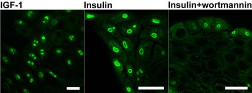 Oncotarget   Insulin/IGF1-PI3K-dependent nucleolar