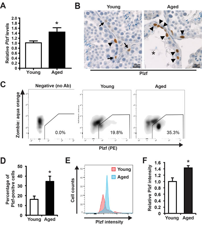 Plzf expression is elevated in aged mouse testes.