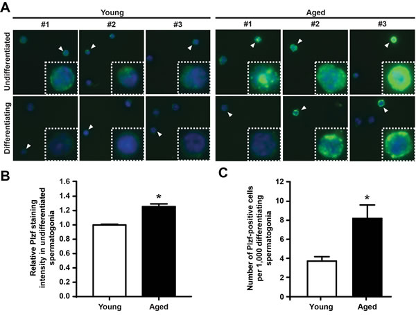 Plzf is expressed in differentiating spermatogonia from aged mouse testes.