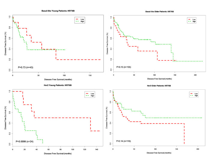 Kaplan-Meier DFS Curves for KRT6B Gene Expression in Basal-like and Her2-enriched Breast Cancer Subtype.