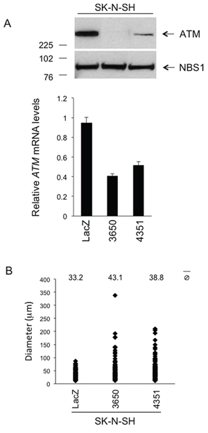 Phenotypic consequences of stable ATM silencing in the SK-N-SH cell line in vitro.
