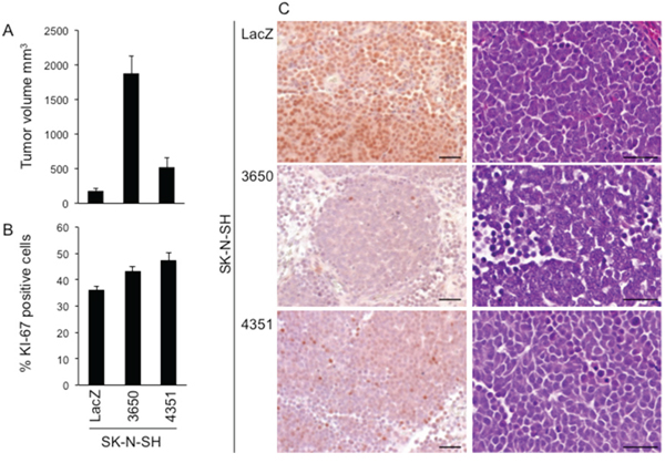 ATM silencing promotes SK-N-SH cell growth in vivo.