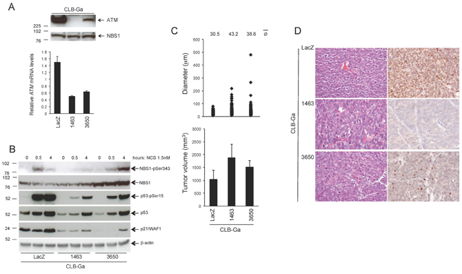 Phenotypic consequences of stable ATM silencing in CLB-Ga cells.