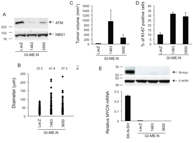 Phenotypic consequences of stable ATM silencing in GI-ME-N cells.