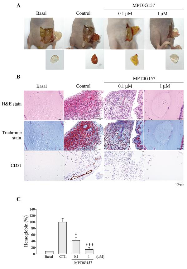 MPT0G157 treatment inhibited the in vivo angiogenesis.
