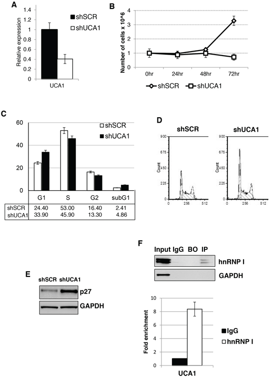 UCA1 sustain AML cell proliferation and regulated p27kip1 expression.