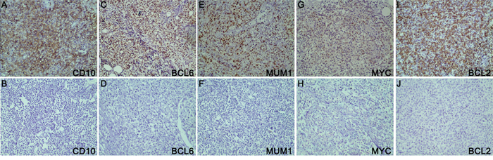 The results of immunohistochemistry.