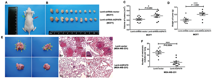 AGPAT9 inhibited tumorigenic and spontaneous lung metastatic capabilities of breast cancer cells.