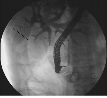 Abnormal perinephric gas shadowing (arrow).