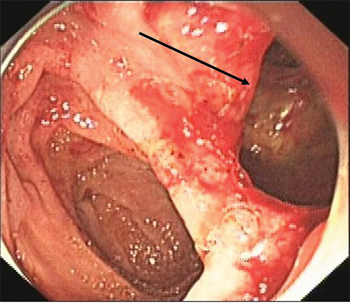 Retroperitoneal loose connective tissue (arrow), viewed endoscopically.