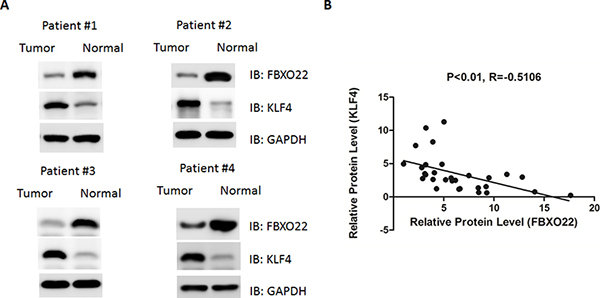 FBXO22 expression was increased in human hepatocarcinoma, correlating with reduced KLF4 expression.