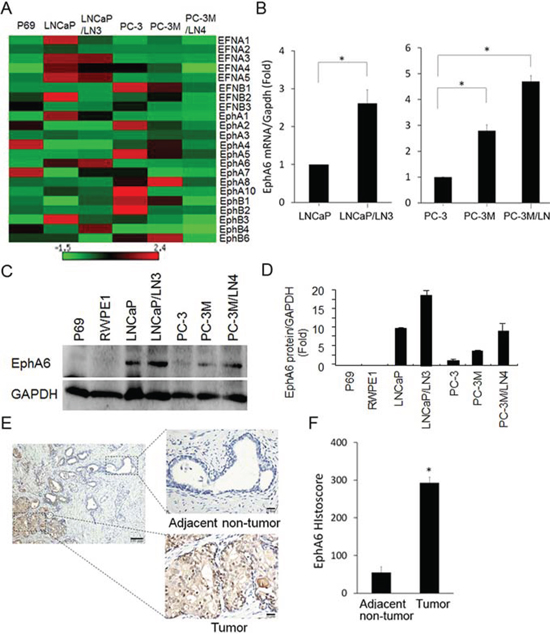 EphA6 mRNA and protein expression is up-regulated in CaP lymph node metastatic cell lines and CaP tumor tissues.