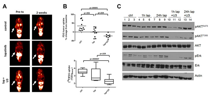 Inhibition of HER3 sensitizes cells to the HER2 inhibitor lapatinib