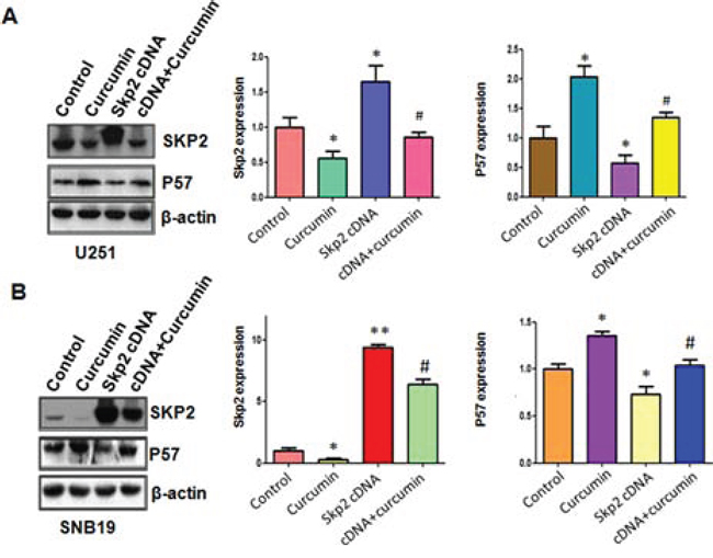 The expression of Skp2 and p57 was measured in Skp2 cDNA transfected glioma cells treated with curcumin.