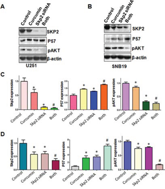 The expression of Skp2 and its targets was measured in Skp2 siRNA transfected glioma cells treated with curcumin.