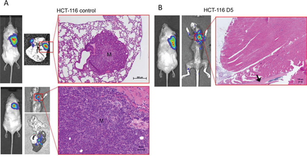 Bioluminescence imaging (BLI) of spontaneous metastasis formation after surgical resection of primary tumors.