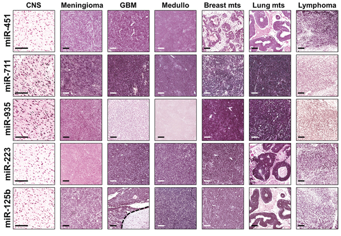 Representative ISH evaluation of miR-125b, miR-223, miR-451, miR-711, miR-935 in tissue sections of primary and metastatic CNS tumors.