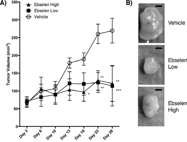 Ebselen treatment of nude mice bearing human tumors.