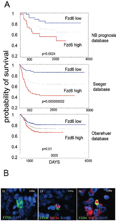 Fzd6 is associated with poor prognosis in neuroblastoma and marks cells with features of cancer stem cells.