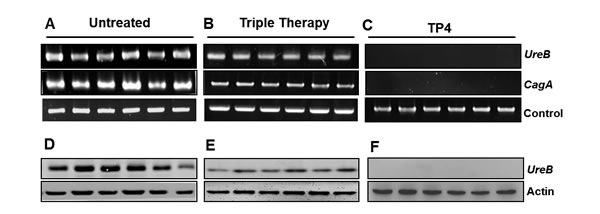 Effects of TP4 on gene and protein expression of