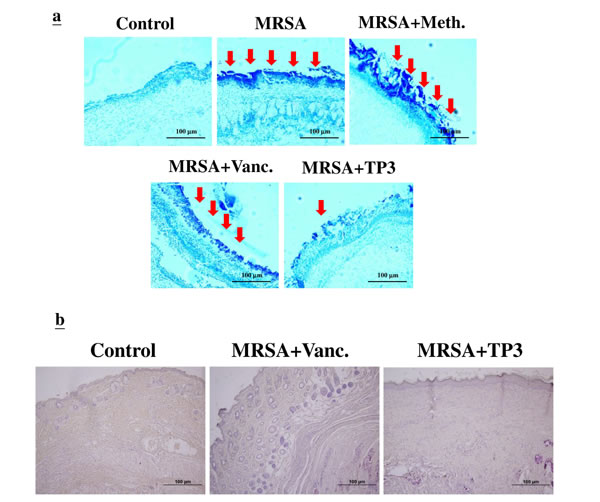 Evaluation of wounds and skin maturation by Gram staining of tissues.