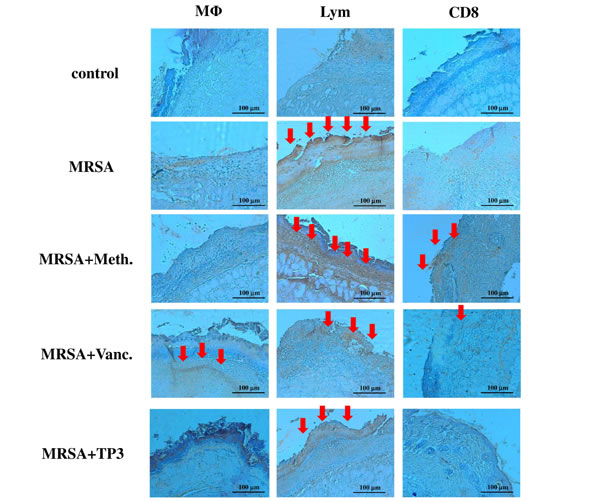 Treatment of infected mice with TP3 enhances infiltration of immune cells.