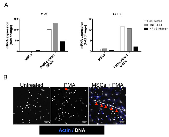NF-κB pathway is involved in neutrophil-dependent stromal cell priming.