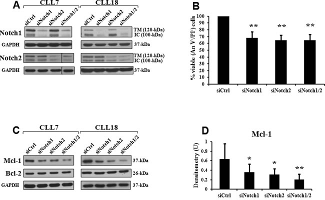 Notch1 and Notch2 silencing decreases cell viability and expression of Mcl-1 protein in CLL cells.