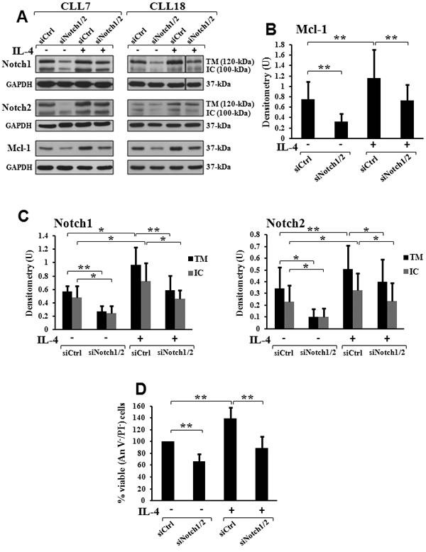 Combined Notch1/2 silencing prevents the increase in Mcl-1 levels and cell viability induced by IL-4 in CLL cells.