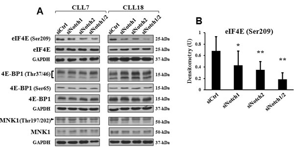 Mcl-1 downregulation by Notch silencing is associated with reduced phosphorylation of eIF4E.