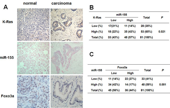 Correlation of K-Ras, miR-155 and Foxo3a expression in human pancreatic cancer tissues.