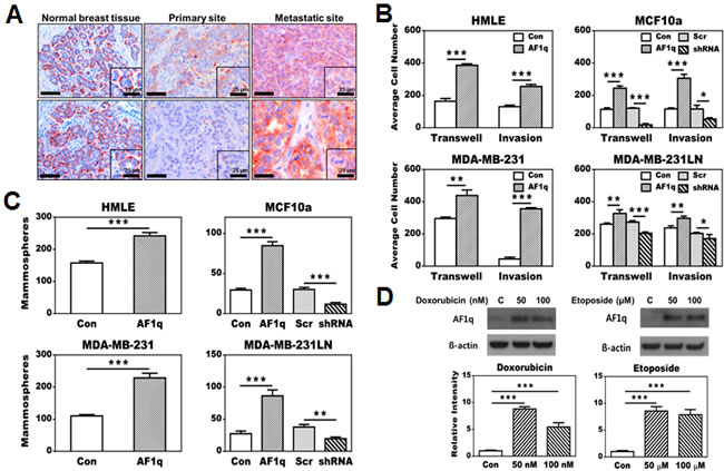 Effects of AF1q expression in breast normal epithelial (HMLE and MCF10a) and cancer cell lines (MDA-MB-231 and MDA-MB-231LN).
