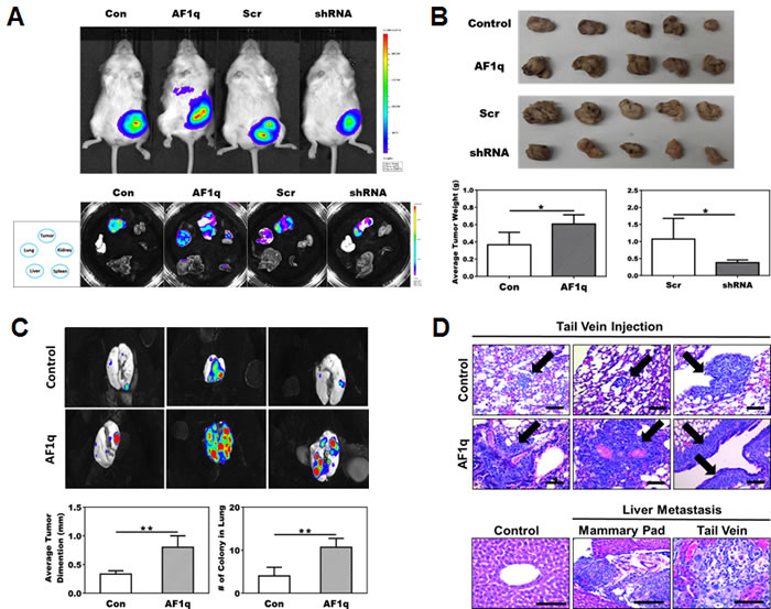 NOD/SCID xenograft mouse models confirm the association of AF1q with breast cancer metastasis.