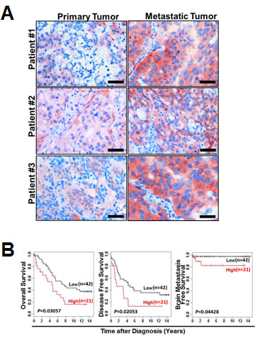 AF1q expression in breast cancer is positively associated with metastasis.