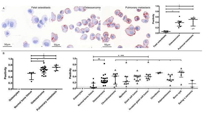 Representative images and data of the CTSD validation on cytospins of all cell lines (A) and tissue microarray validations (B).