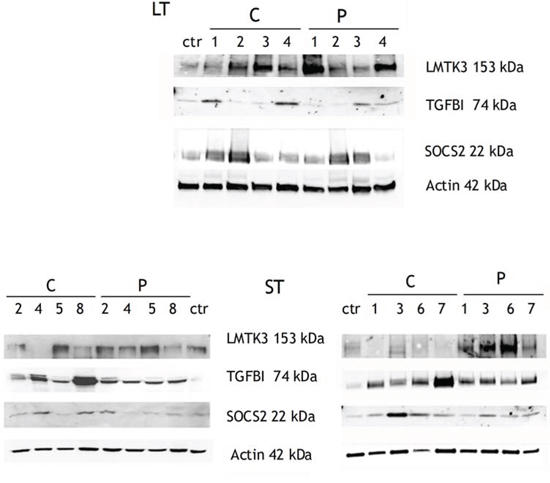 WB validation of three proteins whose mRNAs were overexpressed in C and P samples compared to healthy control.