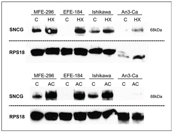 Quantitative detection of SNCG protein.