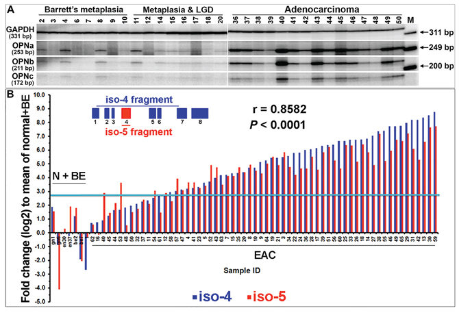 Co-overexpression of all five OPN isoforms in individual primary EACs.