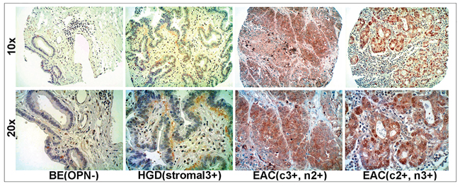 Overexpression of OPN protein in EAC using tissue microarray (TMA) immunohistochemistry.