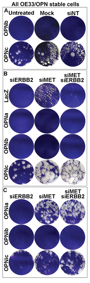 OPN isoform-expressing cells differ in cell detachment phenotypes that can be modulated by the MET oncogene.